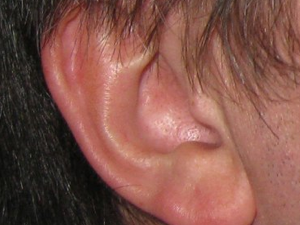 A picture of my ear